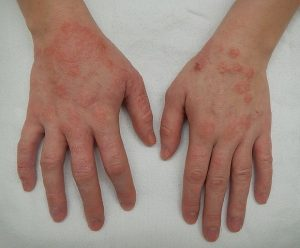 Eczema or dermatitis on hands