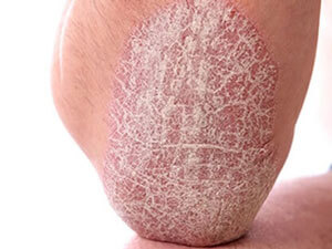 Elbow with psoriasis